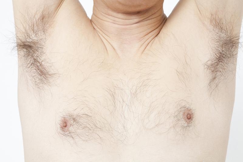 医療脱毛とワキガの関係